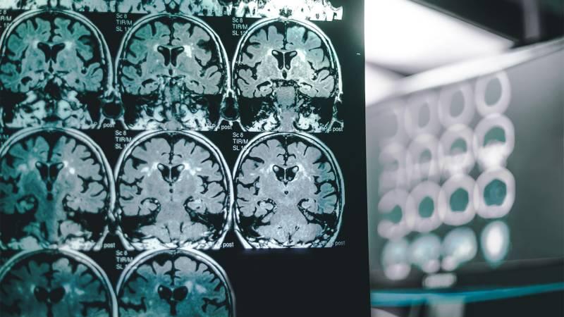 8 Early Symptoms of Alzheimer's Disease