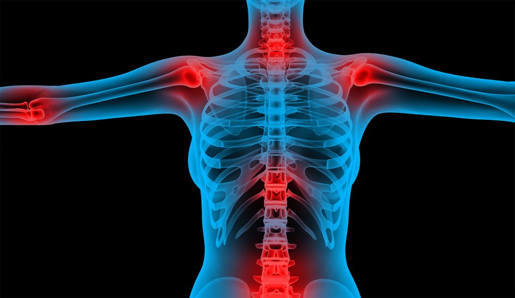 Osteoporosis 101: How Osteoporosis Works