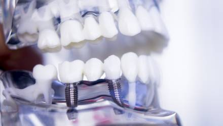 Dental Implants Can Restore Your Perfect Smile - Nation com