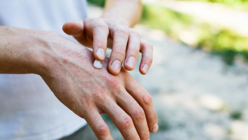 applying cream on hands with psoriasis